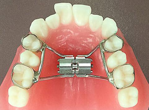 可能な限りの非抜歯