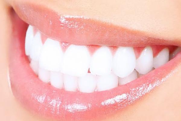 ホワイトニングで綺麗な歯並びを引き立たせます!