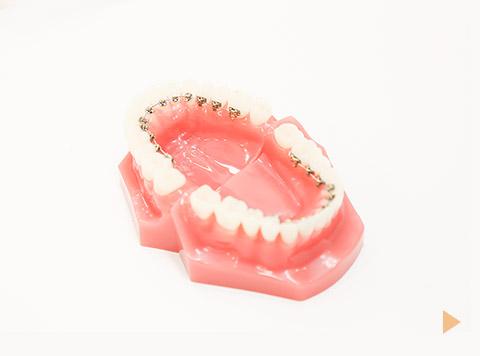 リンガルブラケット矯正装置(舌側矯正)