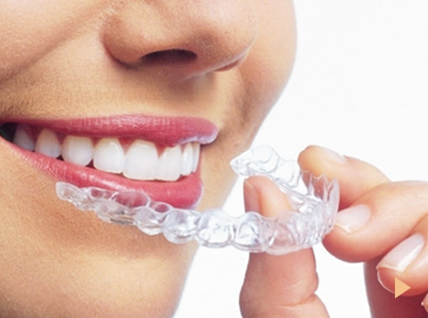 マウスピース型カスタムメイド矯正歯科装置